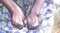 Leprosy at Ogoja.