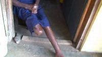 Leprosy disability at Ogoja.